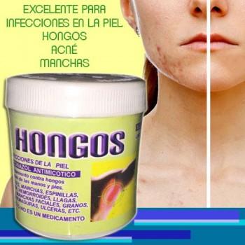 Hongosan Premiun Plus ointment