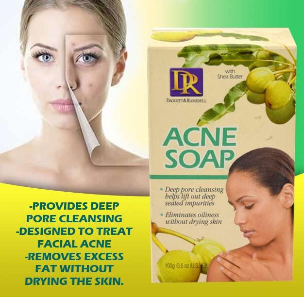 Acne Soap